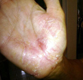 What's the Best Plaque Psoriasis Treatment?