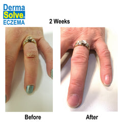 Dermasolve Eczema Before and After