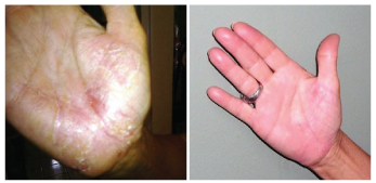 Dermasolve Hands Before and After