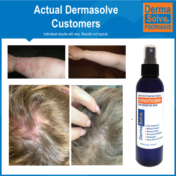 Dermasolve Leave-In-Treatment Spray Conditioner