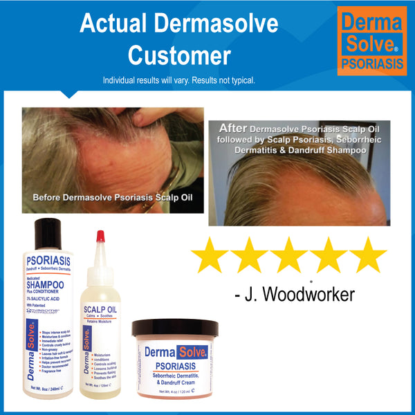All 5 Dermasolve Products
