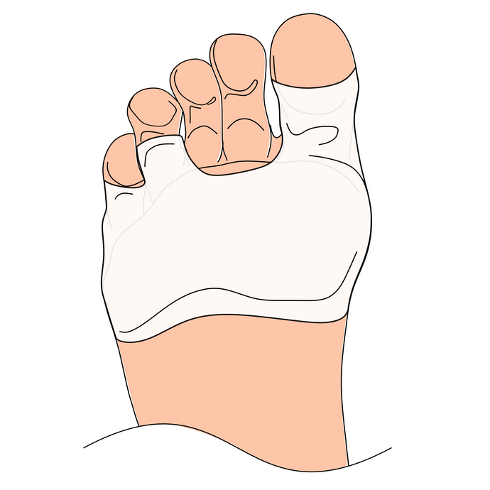 Solewells foot pads cover the bottom of the foot to prevent sliding and sensitive feet