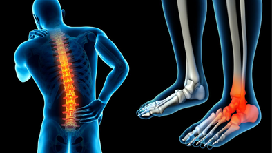 Are Foot and Back Pain Related?
