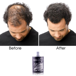 Forever Hair Fibers Hair Thickening Solution - Black - RoyaleUSA