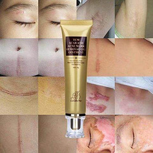 Advanced Scar Treatment Gel (Acne, Stretch Marks, Dark Spots, & More)
