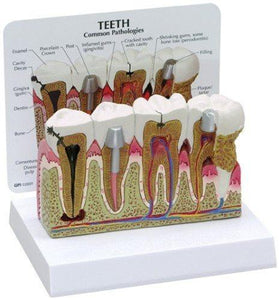 Diseased Teeth and Gums Model Dentists Mountainside-Healthcare.com
