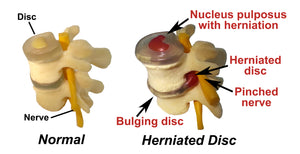 I have a Herniated Disc...