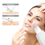 Anion Ultrasonic Skin Cleanser Spatula