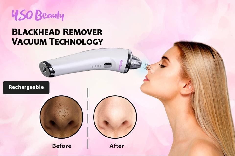 Rechargeable Blackhead Remover