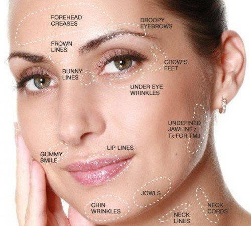 Anti-Wrinkle - 2 Areas - Facethetics