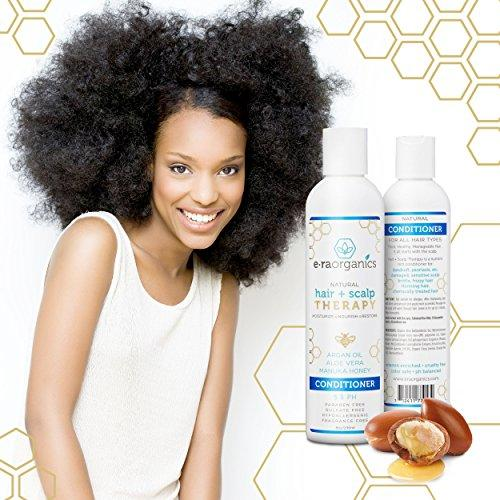 Argan Oil Conditioner for Dry, Itchy Scalp & Dry, Damaged, Frizzy Hair (8oz) Natural Hair Conditioner for Dandruff, Scalp Psoriasis, Eczema & More for Men, Women & Kids. Sulfate Free, Ph Balanced