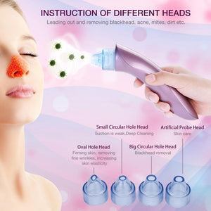 Blackhead Remover And Vacuum Facial Pore Pimple & Acne Cleaner - Vacuum Pore Cleanser And Black Head Remover -Purple - Shopptique