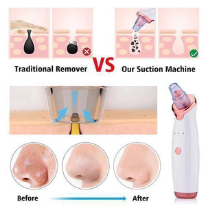 Blackhead Remover And Vacuum Facial Pore Pimple & Acne Cleaner - Vacuum Pore Cleanser And Black Head Remover -White - Shopptique