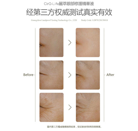CirQ-Life Ageless Instant Repair Eye Serum 眼部修護精華液