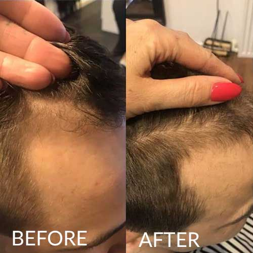 hairlust hair vitamins men before and after
