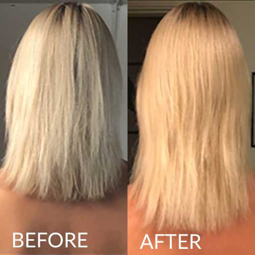 hairlust hair Tablets before and after