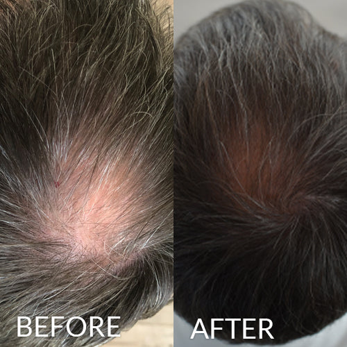 hairlust hair vitamins men before and after image