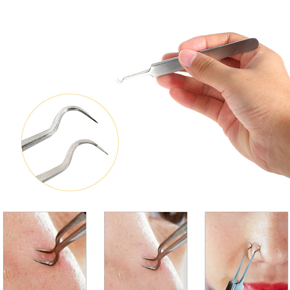 Curved Blackhead Stainless Steel Acne Clip