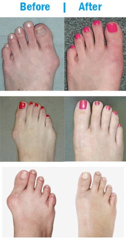 results of the orthopedic bunion corrector