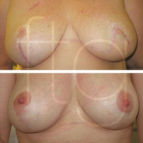 areolas before and after