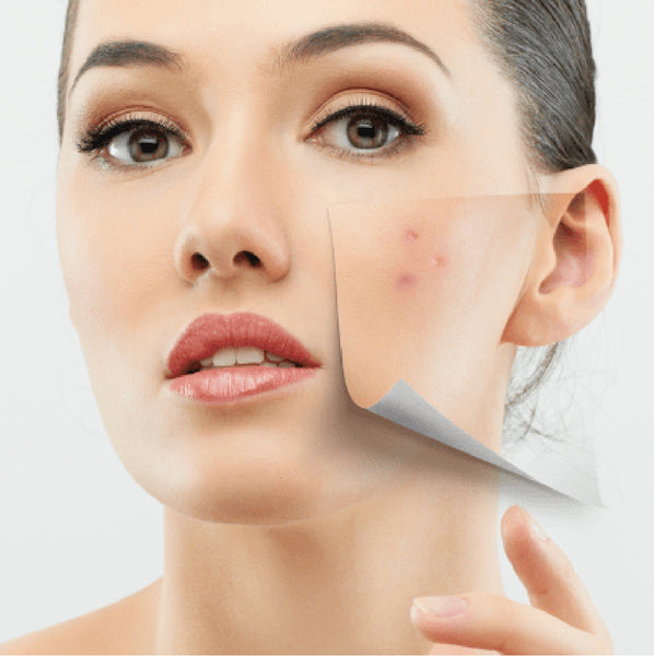 Acne Scar/Wrinkle Treatment