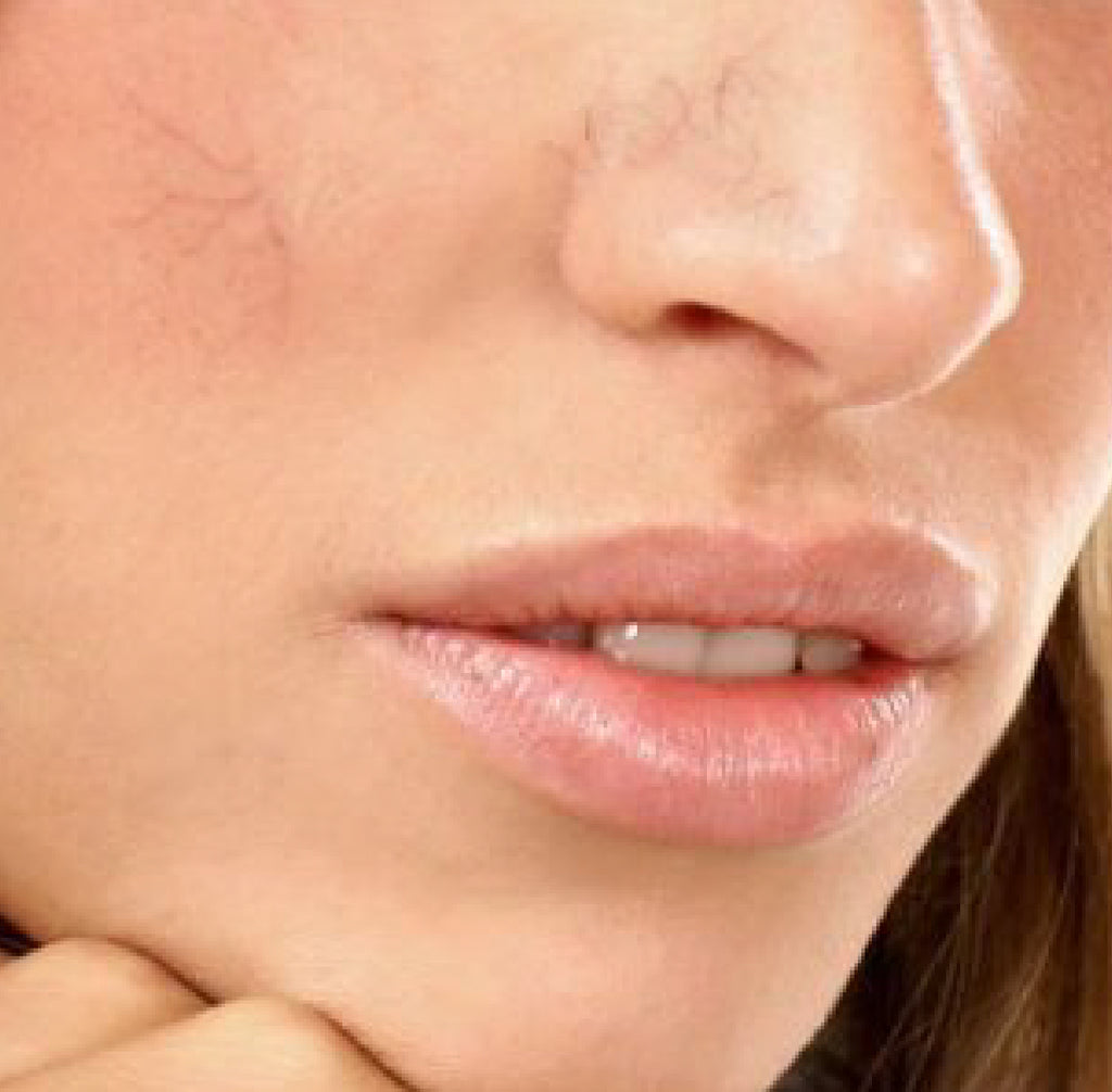 Nose Vein Treatment