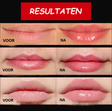 Smooxy™ - Volle Lippen Serum
