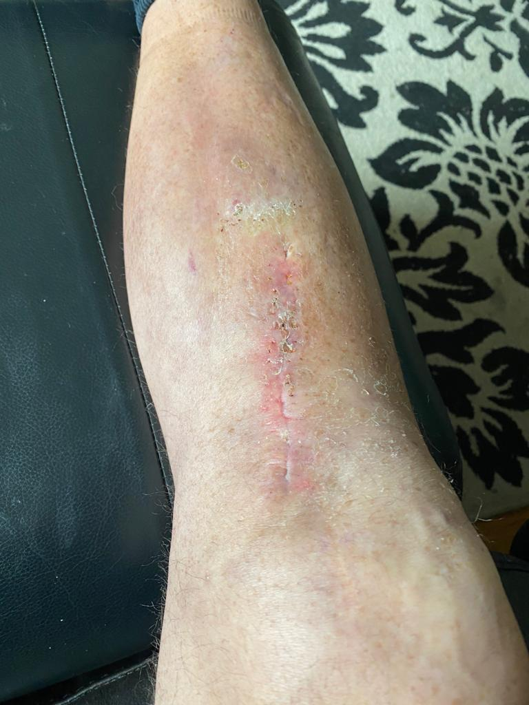 Marks Leg Infection