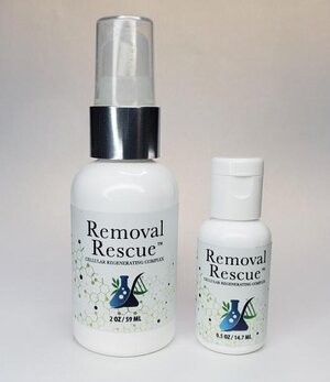 Removal Rescue 2oz