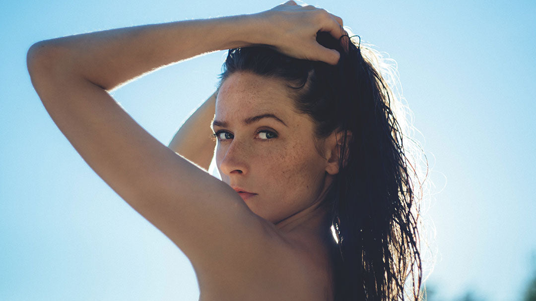 Woman with Hyperpigmentation Freckles Caused by the Sun