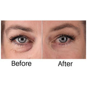 Instant Eye Lift - TVShop
