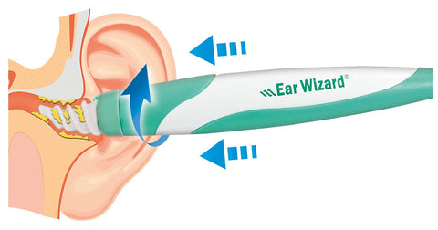 Ear Wizard - TVShop