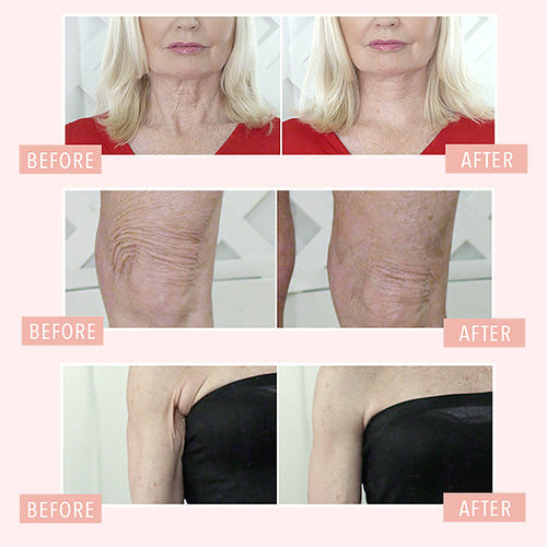 TNS Lift 60 - Plus Free Body Smoothing Pre-Treatment!