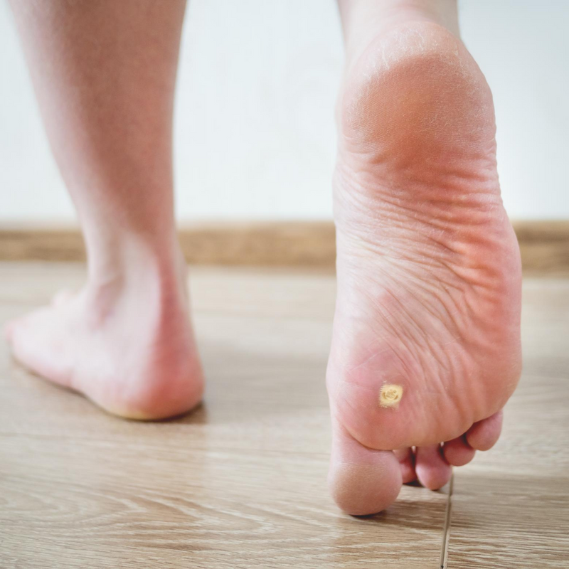 Plantar Warts are the most common
