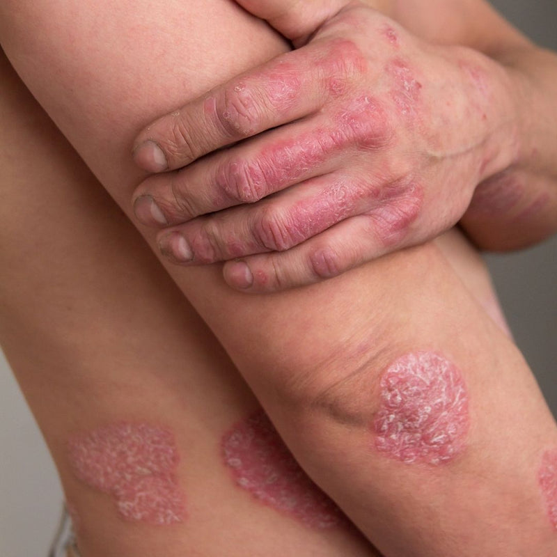Psoriasis is an Inflammatory Skin Condition