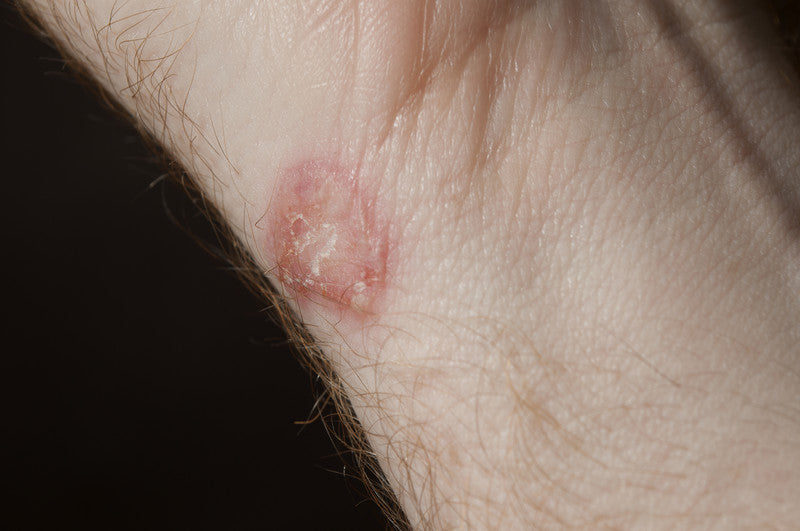 Ringworm, a common fungal infection.