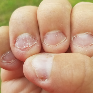 Causes of Fingernail Fungus