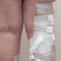 What is Sclerotherapy for varicose veins? | Blog
