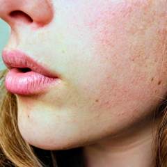 About Rosacea and treatments