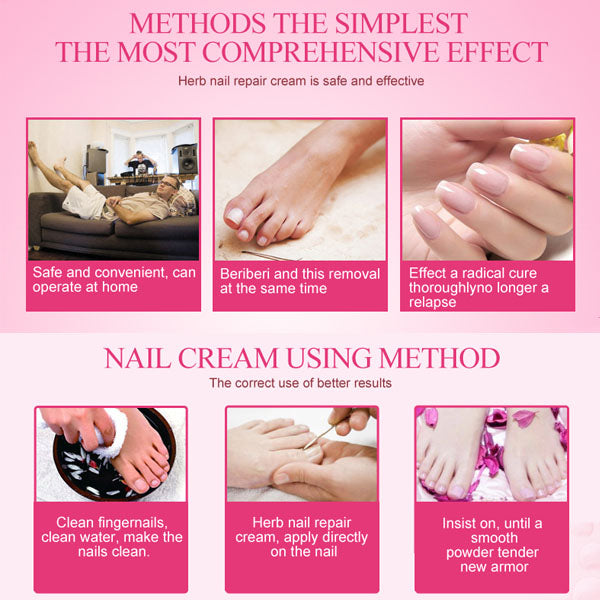 Nail Fungus Removal Cream