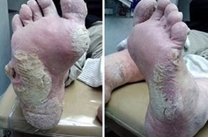Severely Dry Cracked Feet