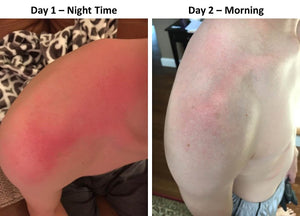 Shoulder Sunburn With Formula 2