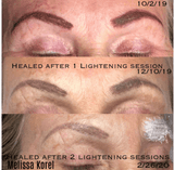 LI-FT Tattoo lightening solution