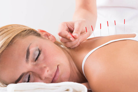 acupuncture pour soulager stress