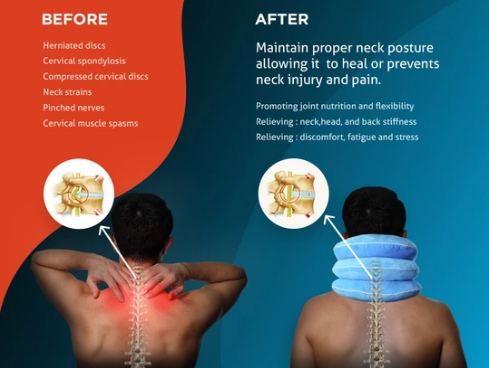 Use Cervical Neck Traction Device to Handle Chronic Neck Pain