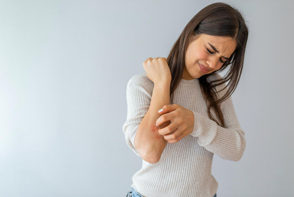 Psoriasis - How to treat in winter? Blog Post Exclusive Beauty Club