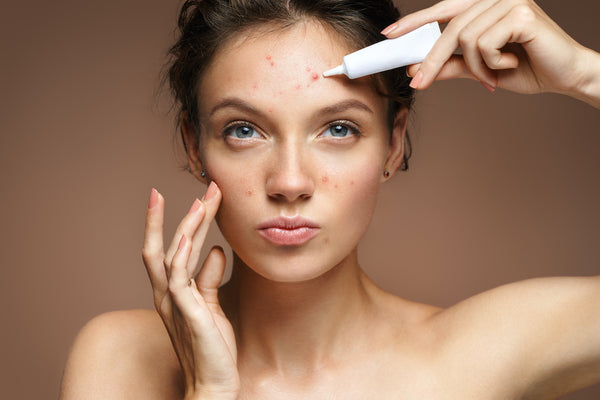 June is Acne Awareness Month ~ 5 Ways to Combat Maskne