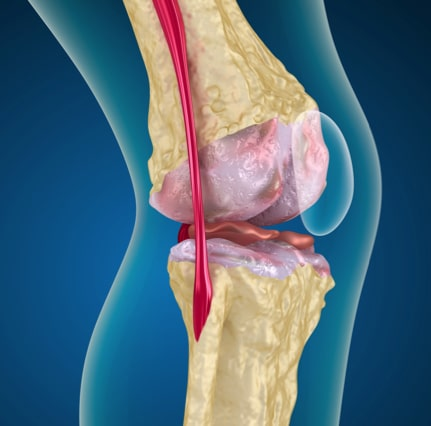 Joint pain often occurs in the knee