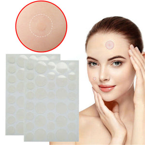 Effective as anything else - Acne Blemish Covers