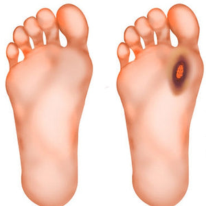 Neuropathy feet